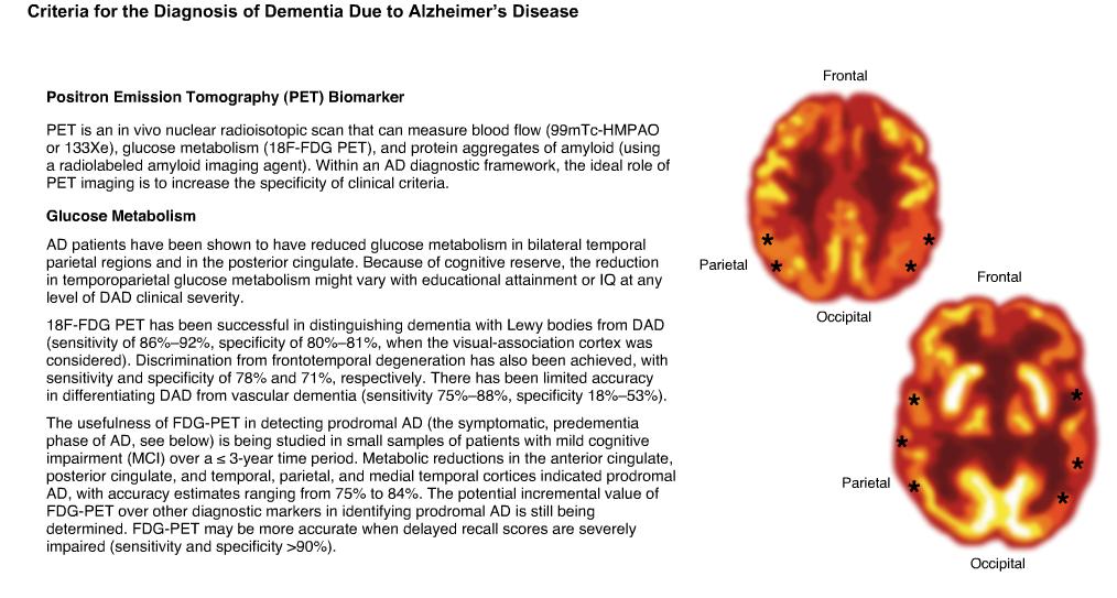 insomnia and alzheimer disease essay